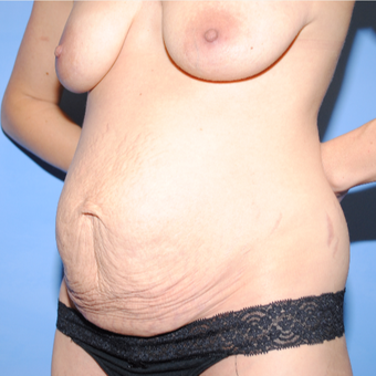 35-44 year old woman treated with Mommy Makeover before 3763212