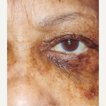 65-74 year old woman treated with Ectropion Treatment after 3377146