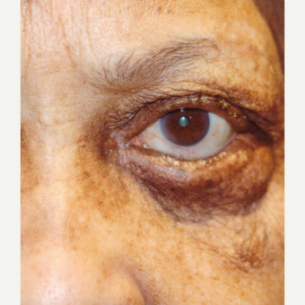 65-74 year old woman treated with Ectropion Treatment before 3377146