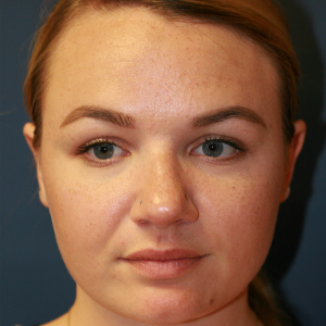 25-34 year old woman treated with Rhinoplasty before 3559750