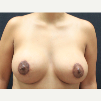 25-34 year old woman treated with Breast Implants after 3225432