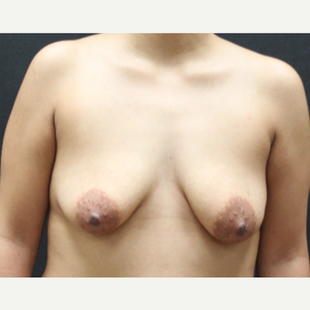 25-34 year old woman treated with Breast Implants before 3225432