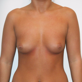 18-24 year old woman treated with Breast Augmentation before 3525877
