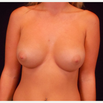 18-24 year old woman treated with Breast Augmentation after 3525877