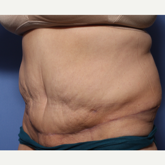 45-54 year old woman treated with Tummy Tuck after 3505883