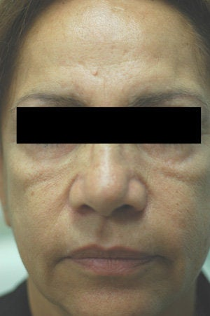 Cheek Shaping with Juvederm Before and After Photos before 204760