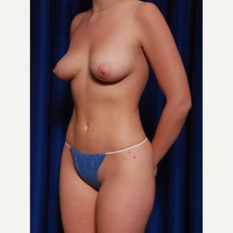 21-24 year old woman treated with Implant removal and Breast Fat Transfer after 2652492
