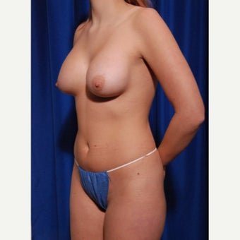 21-24 year old woman treated with Implant removal and Breast Fat Transfer before 2652492