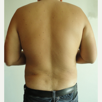 35-44 year old man treated with Vaser Liposuction after 3854258