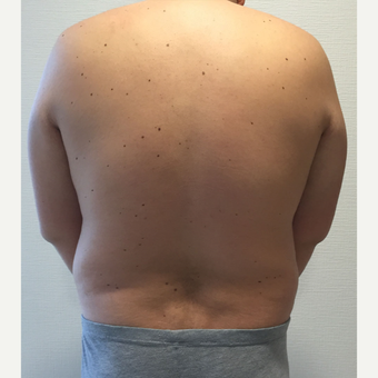35-44 year old man treated with Vaser Liposuction before 3854258