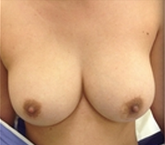 Breast Implant Removal before 2080745