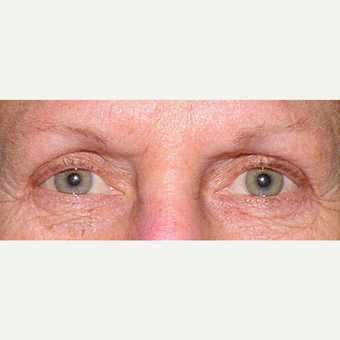 55-64 year old woman treated with Eyelid Surgery after 3441131