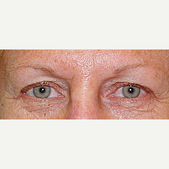 55-64 year old woman treated with Eyelid Surgery before 3441131