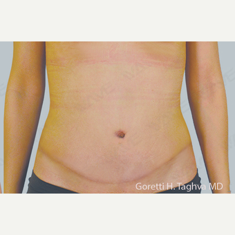 35-44 year old woman treated with Tummy Tuck after 3347046