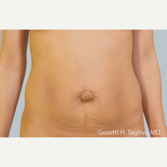 35-44 year old woman treated with Tummy Tuck before 3347046