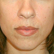 28 Year Old Female Underwent Rhinoplasty Due to a Cosmetic Nasal Deformity