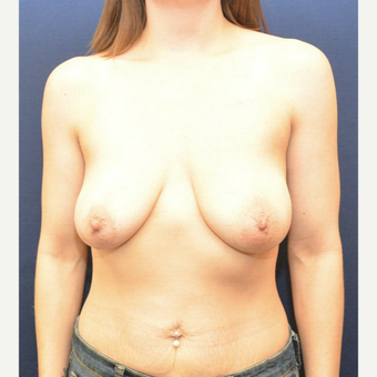 35-44 year old woman treated with Breast Lift with Implants before 3726784