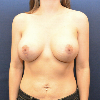 35-44 year old woman treated with Breast Lift with Implants after 3726784