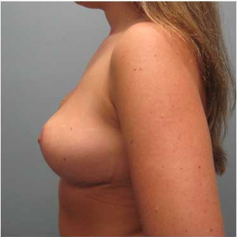25 year old woman treated with Breast Reduction after 3468141