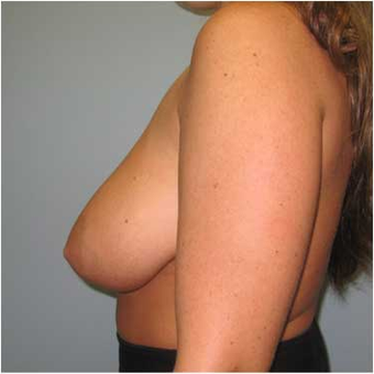 25 year old woman treated with Breast Reduction before 3468141