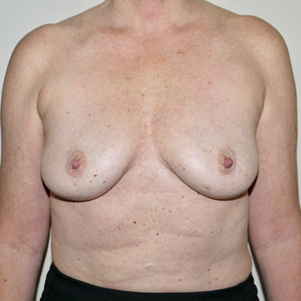 45-54 year old woman treated with Breast Implant Removal after 3579373