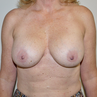 45-54 year old woman treated with Breast Implant Removal before 3579373
