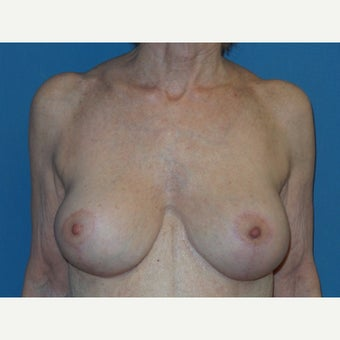 65-74 year old woman treated with Breast Lift with Implants after 2619172
