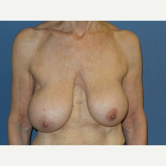 65-74 year old woman treated with Breast Lift with Implants before 2619172