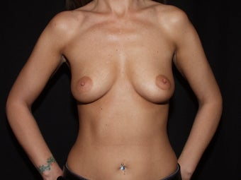 Breast Augmentation - new generation silicone gel before 559547