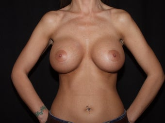 Breast Augmentation - new generation silicone gel after 559547