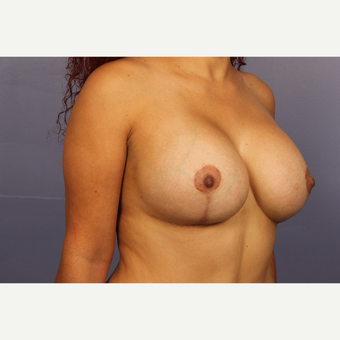 25-34 year old woman treated with Breast Lift with Implants after 3110300