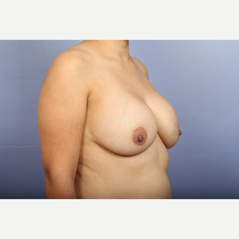 25-34 year old woman treated with Breast Lift with Implants before 3110300