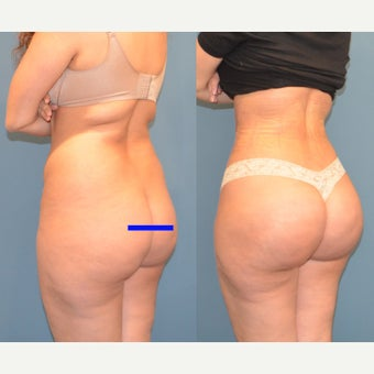 25-34 year old woman treated with Brazilian Butt Lift after 2291105