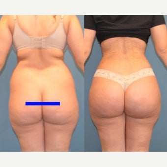 25-34 year old woman treated with Brazilian Butt Lift before 2291105