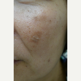 Lasers for age spots before 3125261