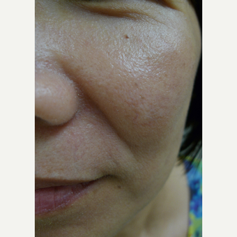 Lasers for age spots after 3125261