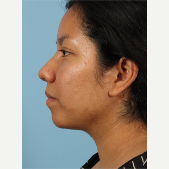 35-44 year old woman treated with Rhinoplasty before 3622687