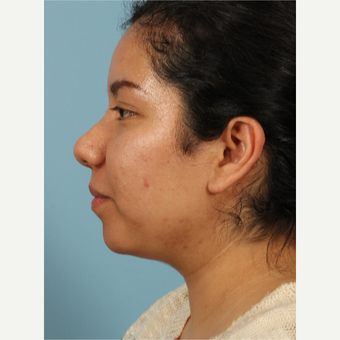 35-44 year old woman treated with Rhinoplasty after 3622687
