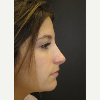 18-24 year old woman treated with Rhinoplasty after 3482558