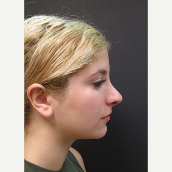 18-24 year old woman treated with Rhinoplasty before 3482558