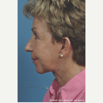 65-74 year old woman treated with Rhinoplasty after 3781633