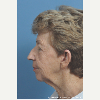 65-74 year old woman treated with Rhinoplasty before 3781633
