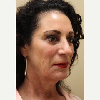 55-64 year old woman treated with Modified Facelift before 3507225