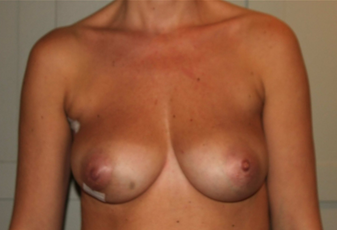Nipple-Sparing Breast Reconstruction Surgery for 30-Year Old Woman