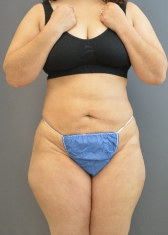 35-44 year old woman treated with Laser Liposuction after 1540175