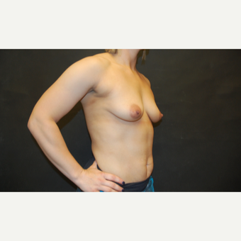 25-34 year old woman treated with Breast Implants before 3071696
