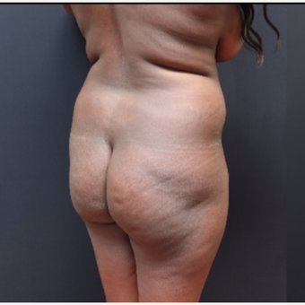 25-34 year old woman treated with Butt Augmentation before 3363829