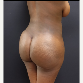25-34 year old woman treated with Butt Augmentation after 3363829
