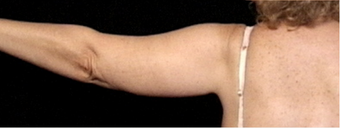 45-54 year old woman treated with Arm Lift after 3663672