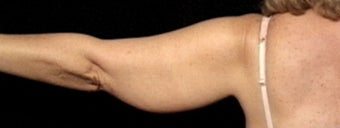 45-54 year old woman treated with Arm Lift before 3663672